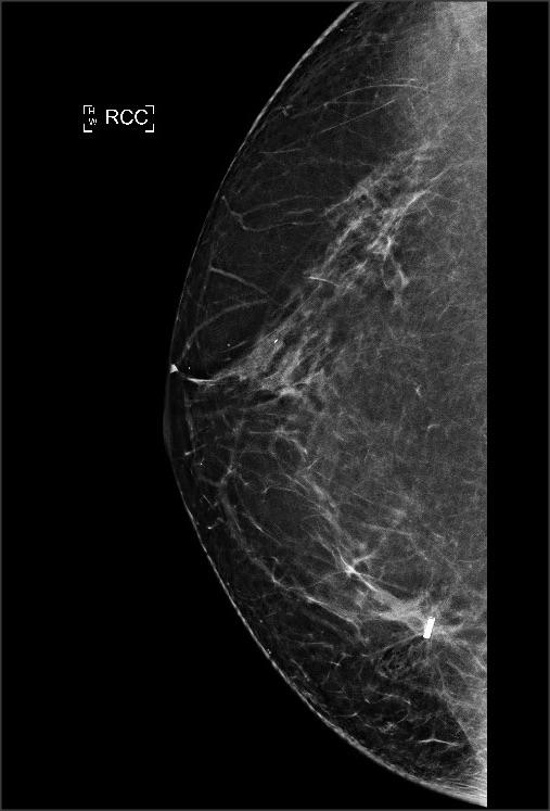 Nieuwe patiëntvriendelijke manier om borstkankertumor op te sporen. Kleinere littekens en betere cosmetische resultaten