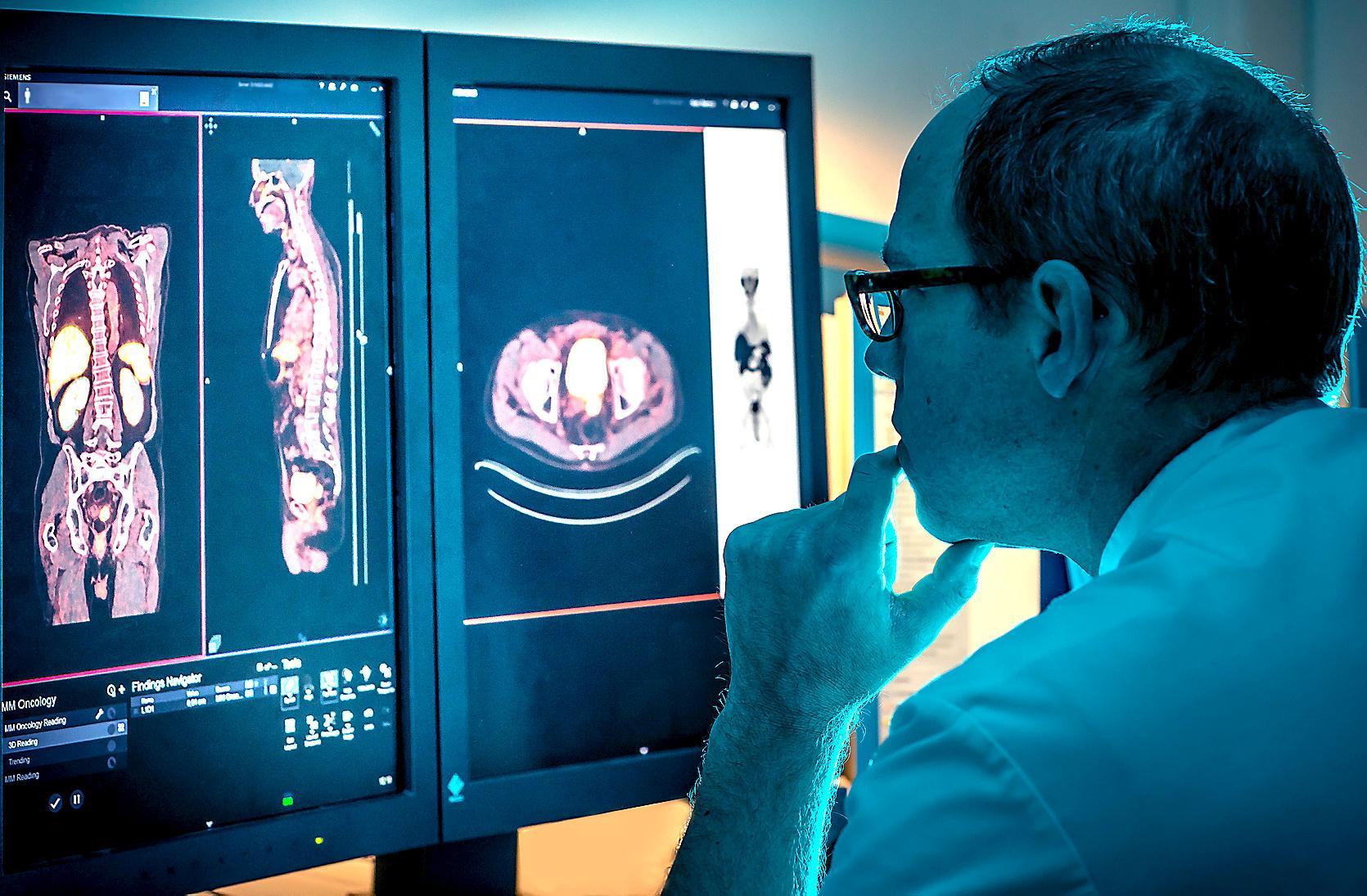 Ziekenhuizen pakken samen prostaatkanker aan