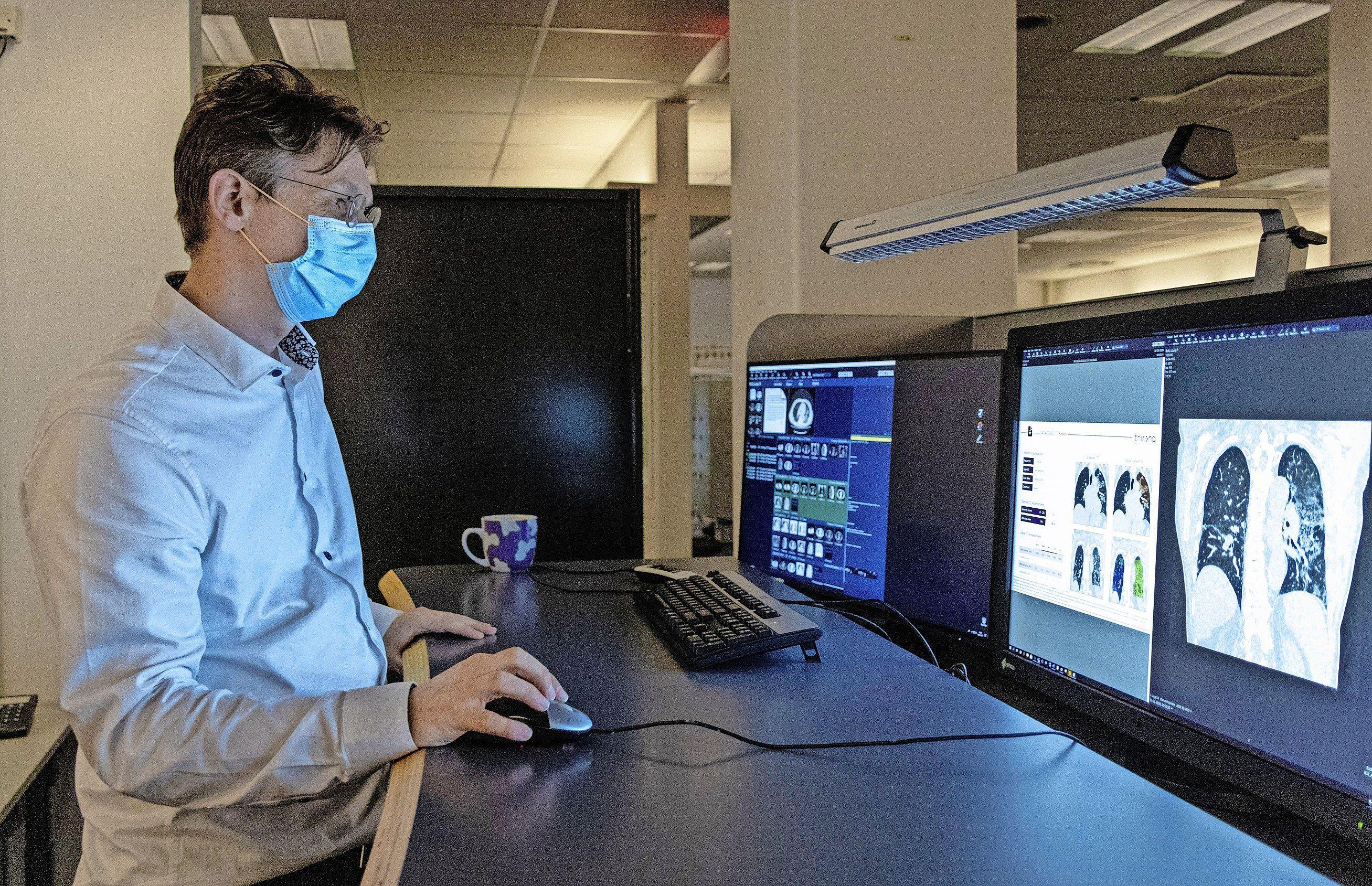 Computer in LUMC zoekt naar longschade door Covid. Radioloog Hildo Lamb is blij met hulp kunstmatige intelligentie