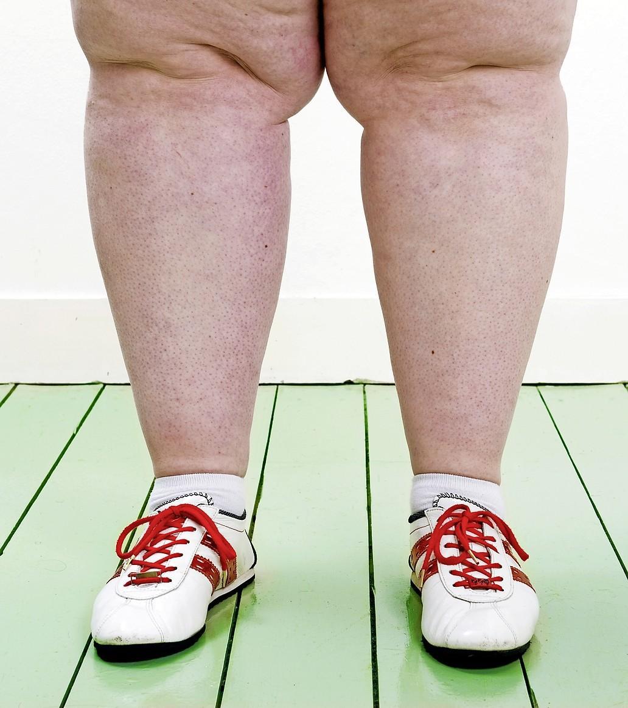 Een op vijf kinderen Purmerend te zwaar