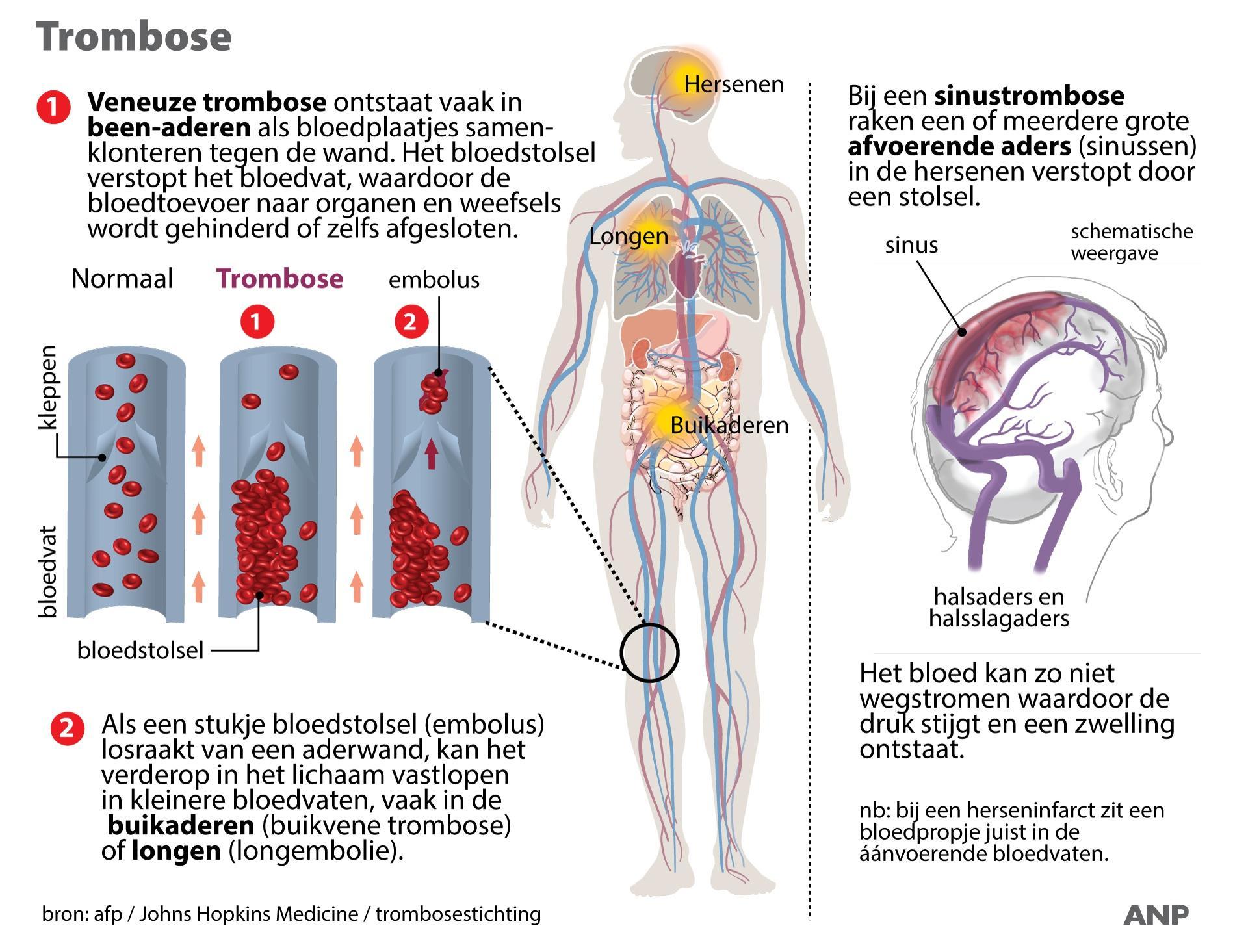 'Meer trombose door corona dan vaccinatie' en andere antwoorden over bloedstollingen